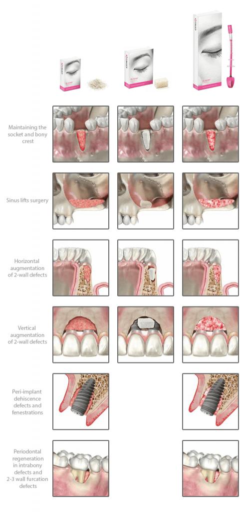 f93aa2e163-applicazioni-cliniche-rebone-en